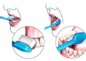Μαθήματα σωστού βουρτσίσματος των δοντιών σε μαθητές του Ναυπλίου